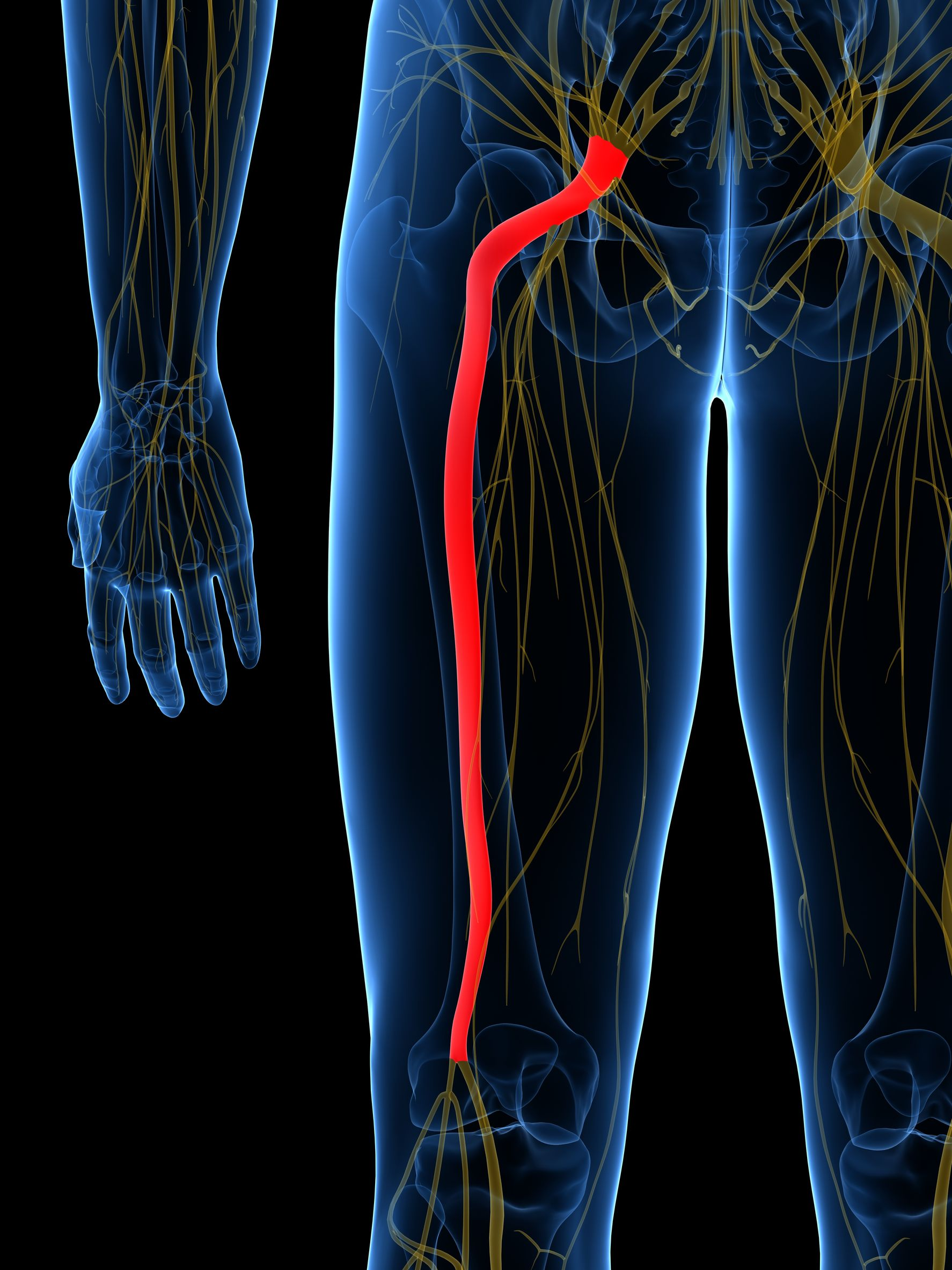 Sciatica What It Is Common Causes And How To Fix It Arc Health